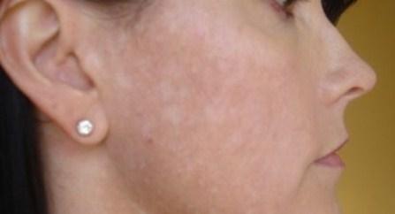 liyoskin, testimoni liyoskin, flek putih, bercak putih diwajah, panu, vitiligo, lepra, hipopigmentasi, flek putih diwajah